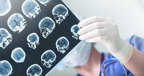 Alzheimer : Un nouveau cas toutes les quatre secondes