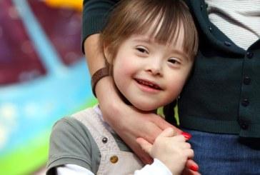 Journée mondiale de la trisomie 21 : ces créatures qui ont quelque chose de plus !