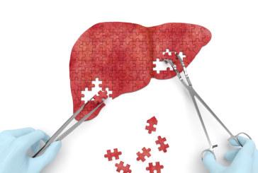 Première transplantation hépatique au CHU Hassan II de Fès
