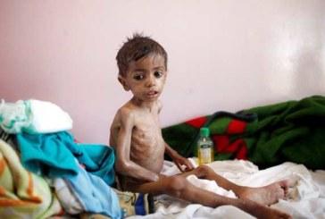 Famine au Yémen: la FAO et la Banque mondiale se mobilisent