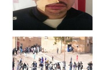 Jerada: Les photos des blessés graves parmi les forces de l'ordre lors de la dispersion d'un sit-in