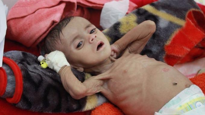 """""""Le Yémen, un enfer pour les enfants"""""""